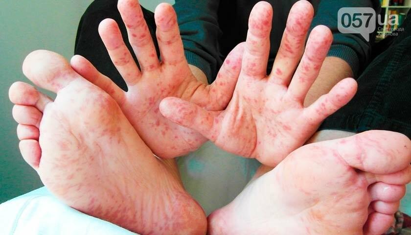Эпидемия кори в Харькове. Эксперты рассказали, как не заболеть, - ФОТО , фото-1