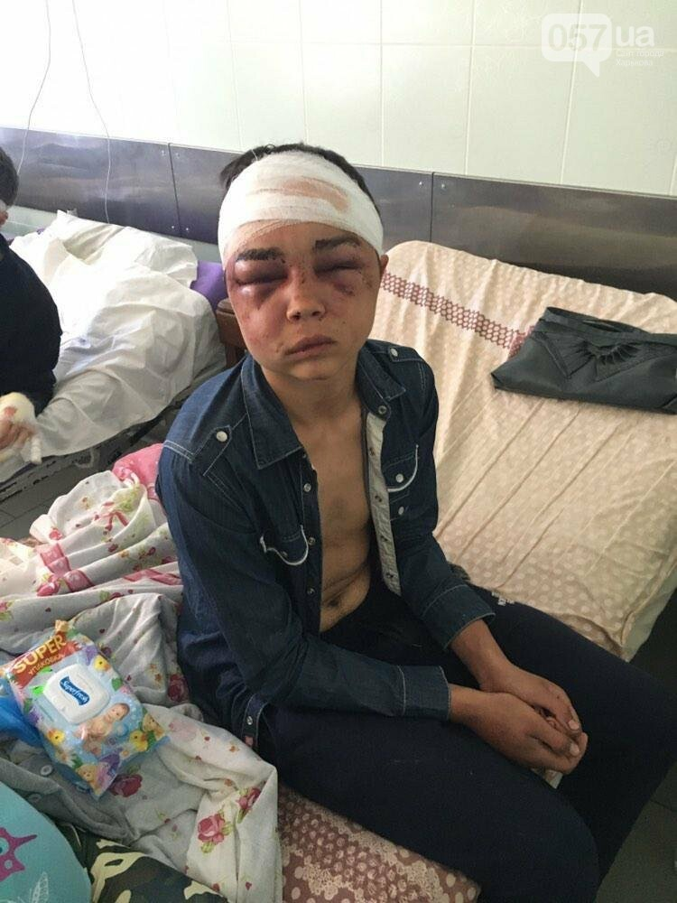 """""""Насиловали черенком, вырывали ногти и избивали арматурой"""": на Рогани похитили и зверски пытали 17-летнего парня, - ФОТО, фото-1"""