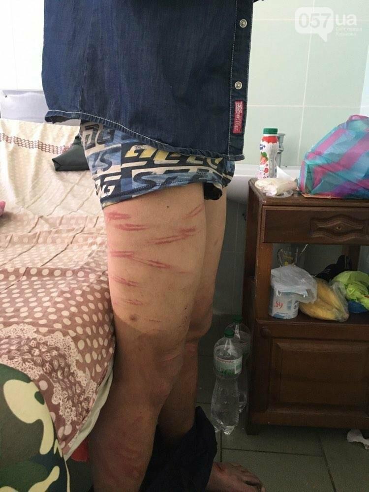 """""""Насиловали черенком, вырывали ногти и избивали арматурой"""": на Рогани похитили и зверски пытали 17-летнего парня, - ФОТО, фото-4"""