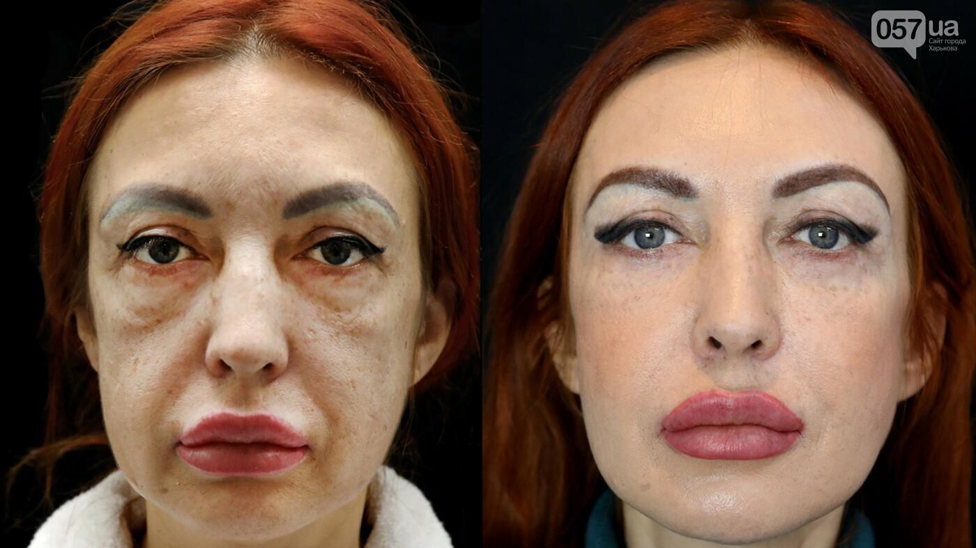 Хирургия без скальпеля: стать моложе на 10 лет, фото-5