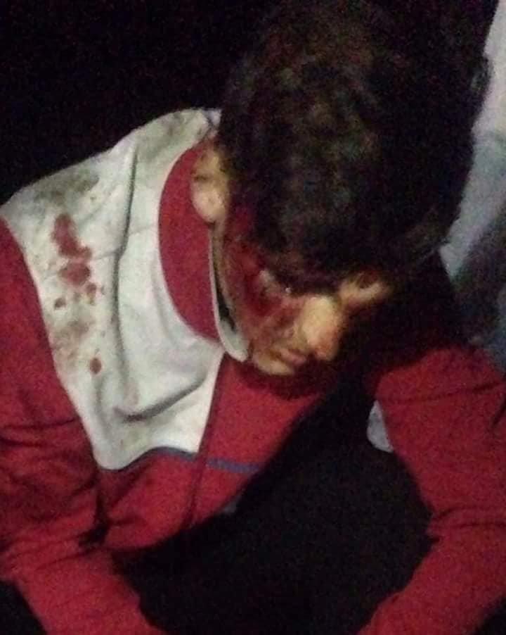 «Скорую» вызвали свидетели драки. По их словам, такие нападения не единичны. За медицинской помощью обратились еще 6 человек.