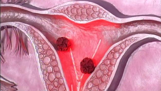 Рак матки, яичников и шейки матки в 2018 году – обзор современных методов лечения в Израильском медицинском центре им. Рабина, фото-1