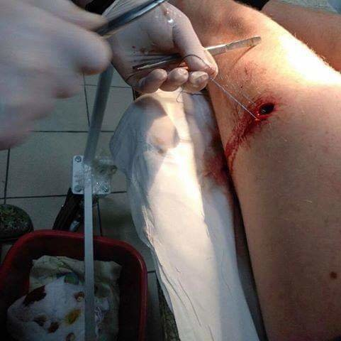 В Харькове двое неизвестных стреляли в мужчину. Полиция разыскивает очевидцев инцидента, - ФОТО, фото-1
