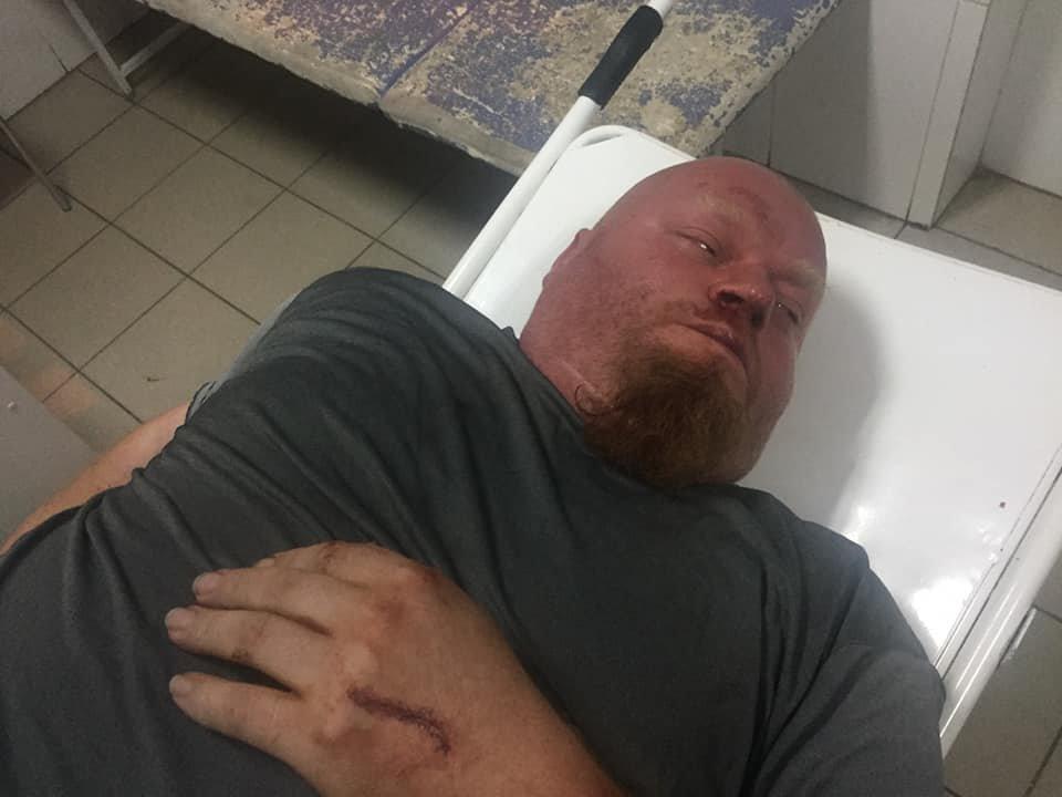 Конфликт на «Барабашово»: избит видеооператор одного из телеканалов, - ФОТО, фото-5