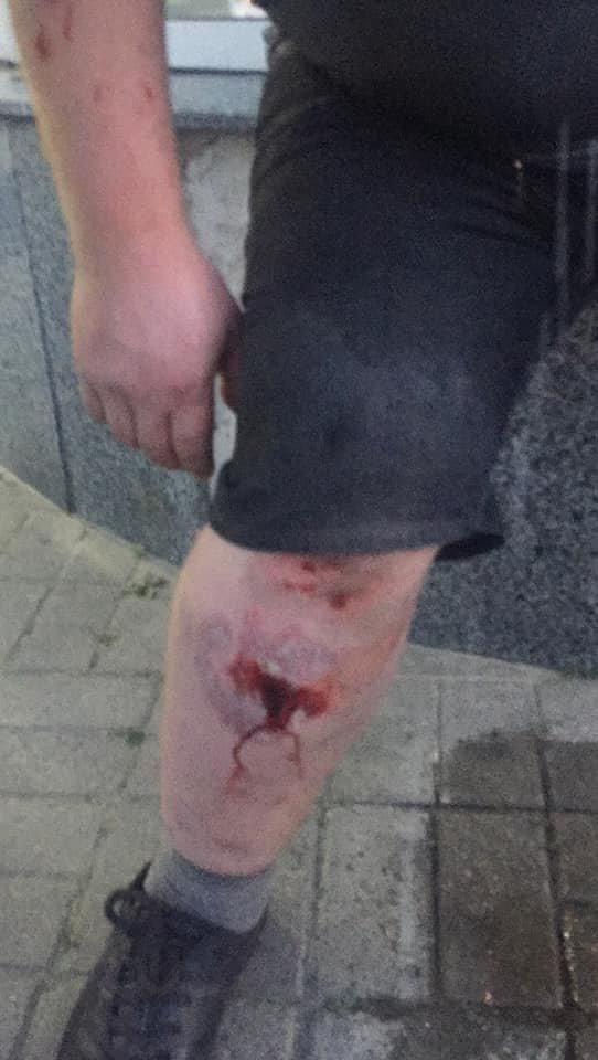Конфликт на «Барабашово»: избит видеооператор одного из телеканалов, - ФОТО, фото-3