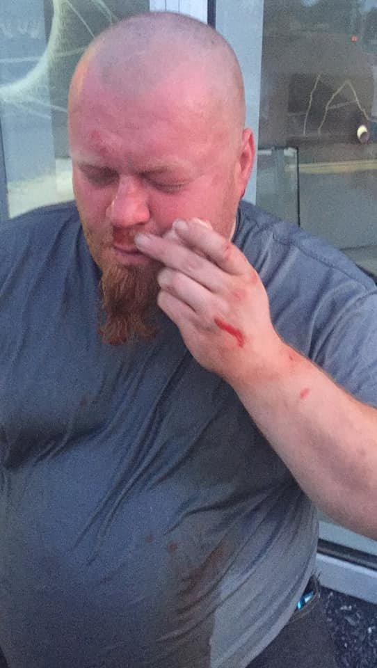Конфликт на «Барабашово»: избит видеооператор одного из телеканалов, - ФОТО, фото-1