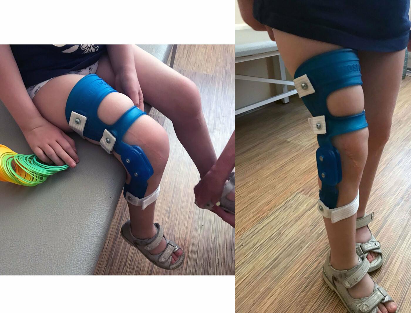 Ортез на коленный сустав, изготовленный на 3Д принтере