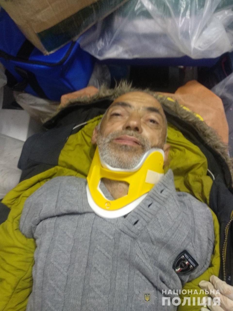 Харьковская полиция просит помочь опознать личность погибшего мужчины, - ФОТО 18+, фото-1